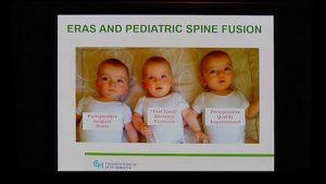 ERAS in Spine Surgery