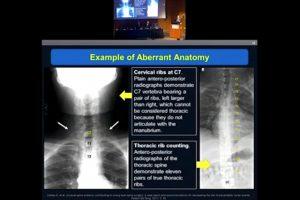 Avoiding wrong site surgery