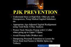 Proximal Junctional Kyphosis (PJK) in adults